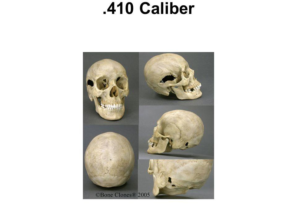 .410 Caliber