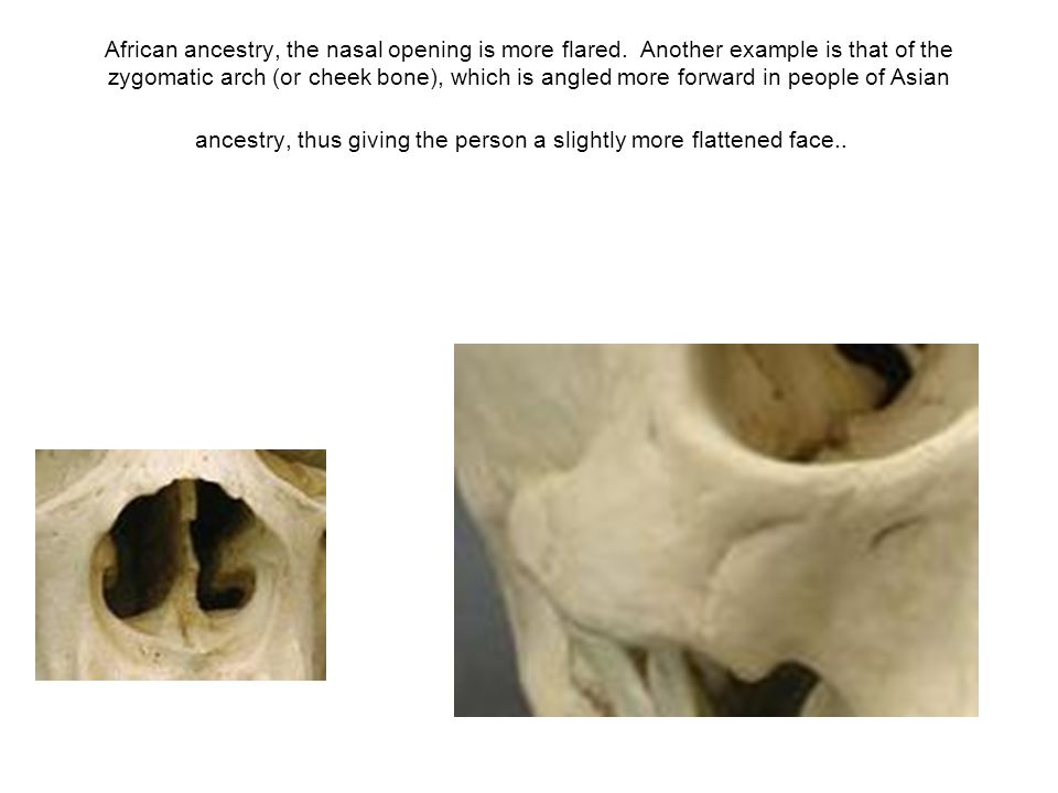 African ancestry, the nasal opening is more flared