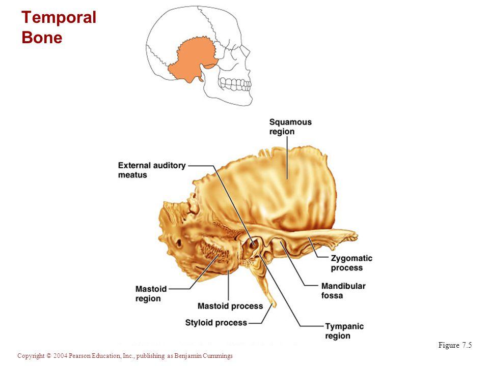Temporal Bone Figure 7.5