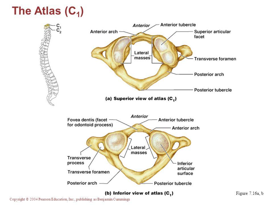 The Atlas (C1) Figure 7.16a, b
