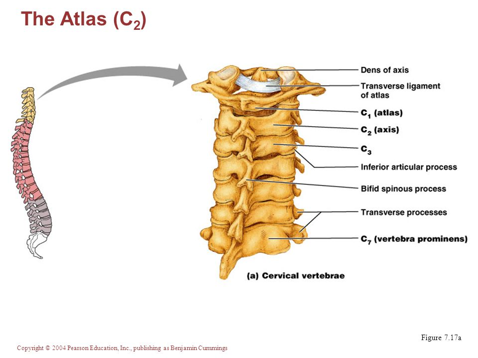 The Atlas (C2) Figure 7.17a