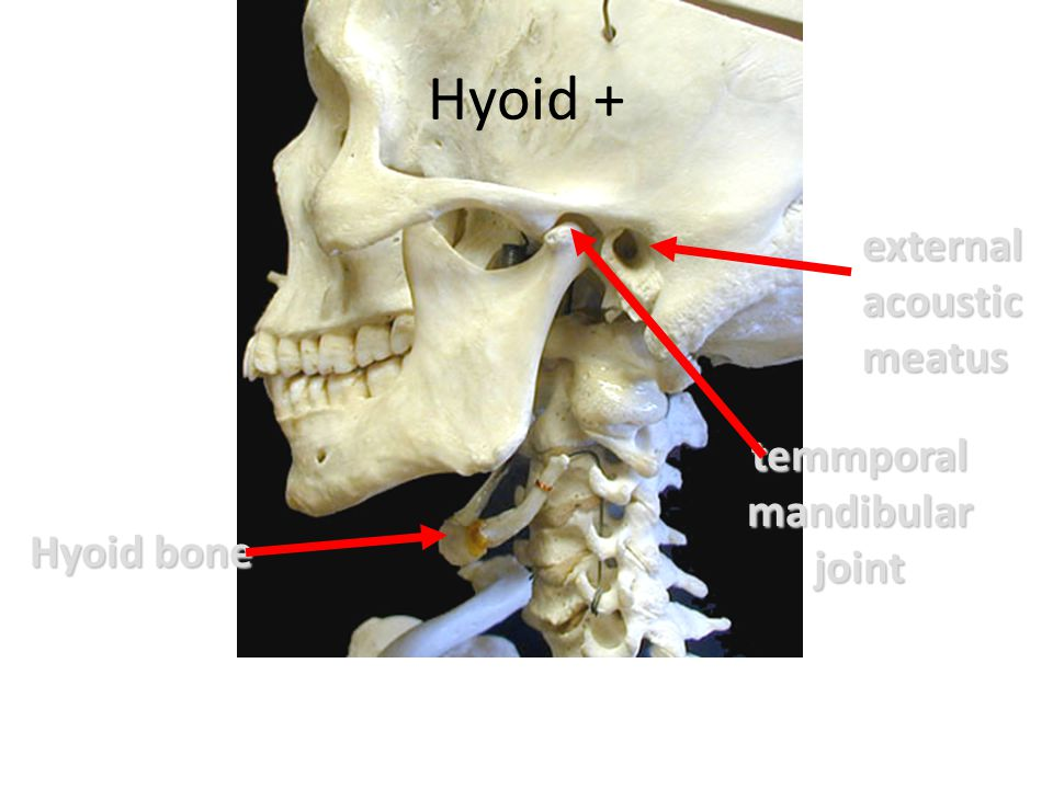 Hyoid + external acoustic meatus temmporal mandibular joint Hyoid bone