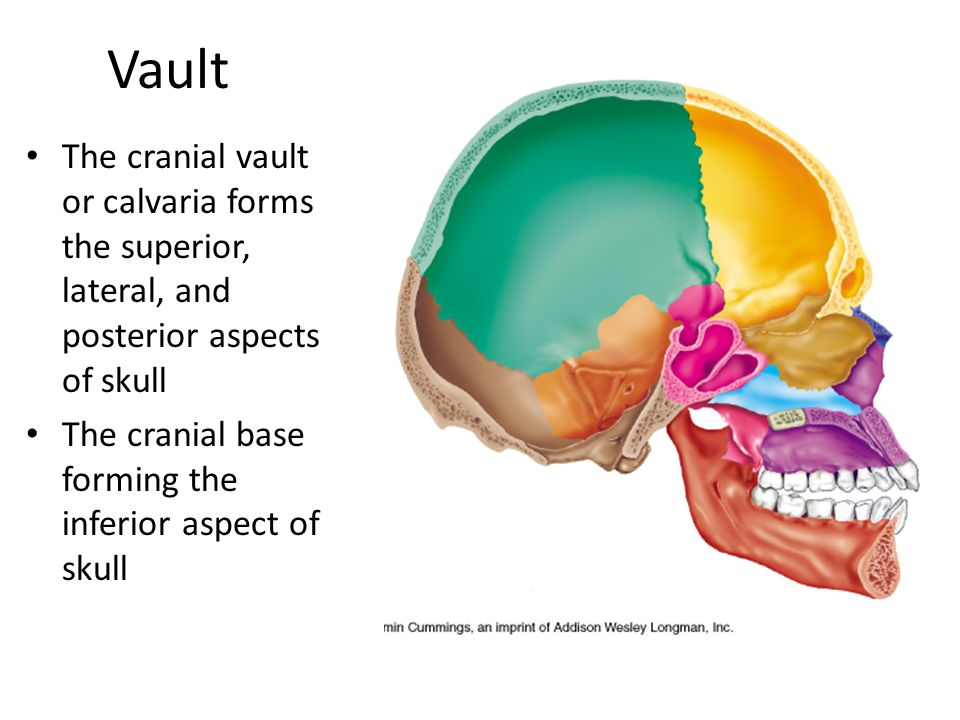 Vault The cranial vault or calvaria forms the superior, lateral, and posterior aspects of skull.