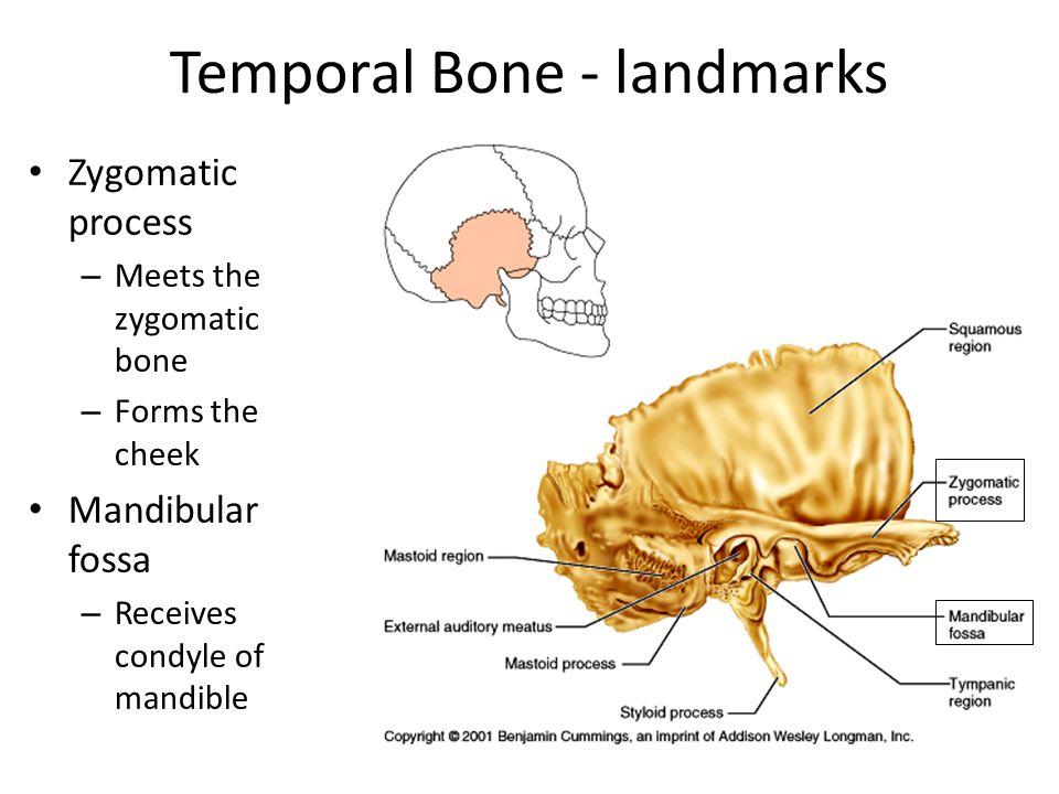 Temporal Bone - landmarks