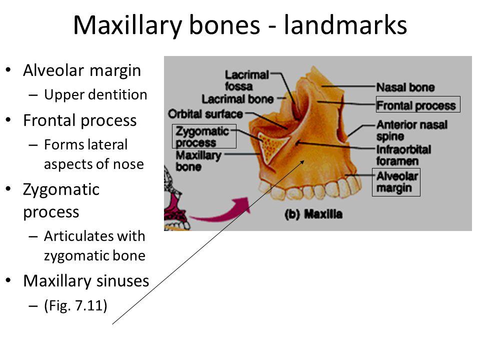 Maxillary bones - landmarks