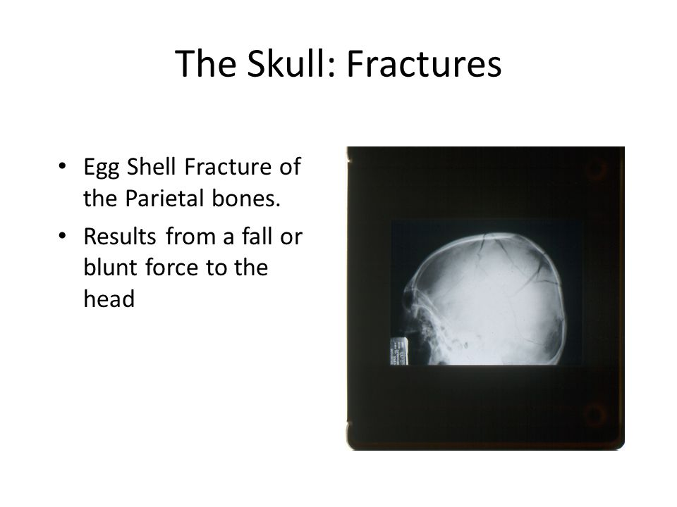 The Skull: Fractures Egg Shell Fracture of the Parietal bones.