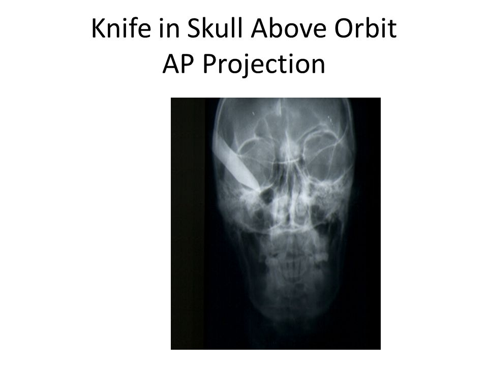 Knife in Skull Above Orbit AP Projection
