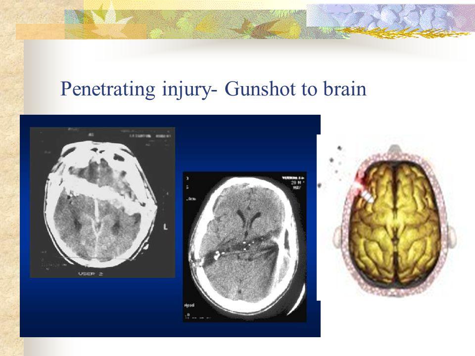 Penetrating injury- Gunshot to brain