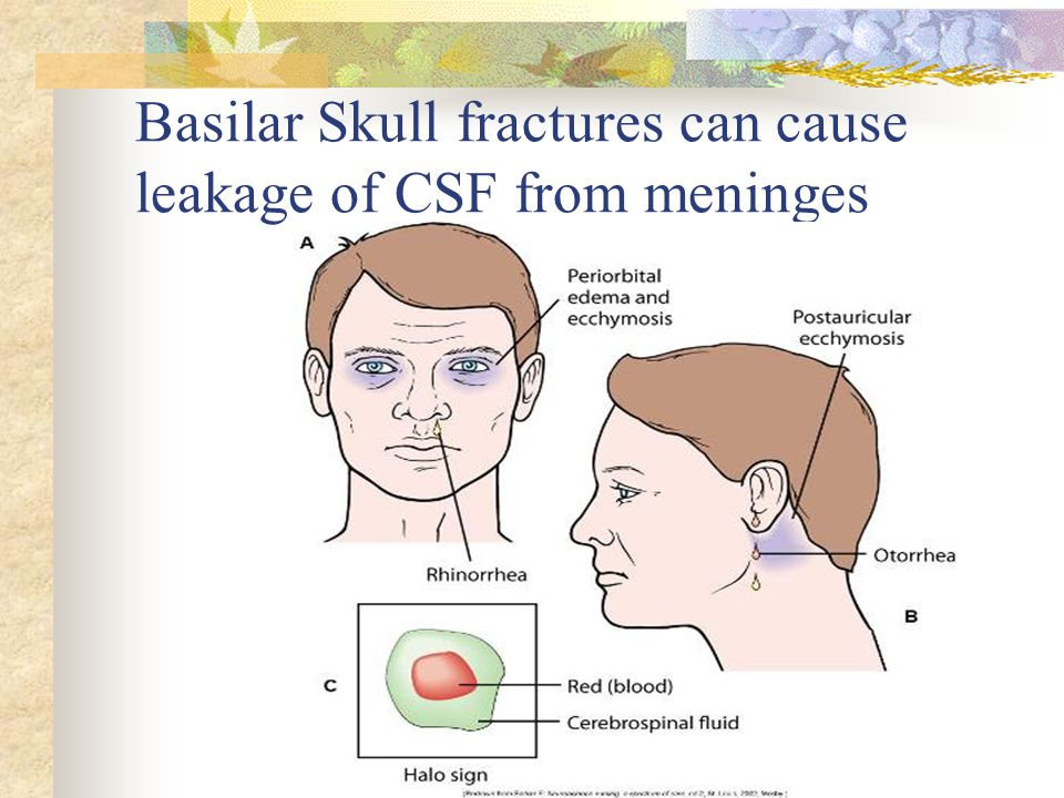 Basilar Skull fractures can cause leakage of CSF from meninges