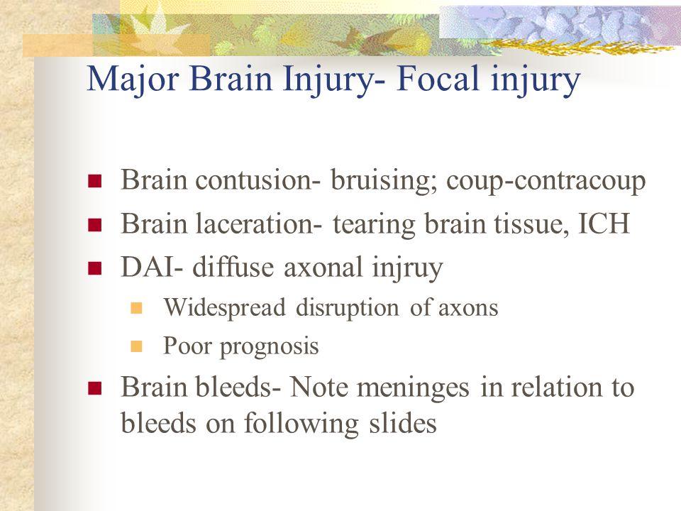 Major Brain Injury- Focal injury