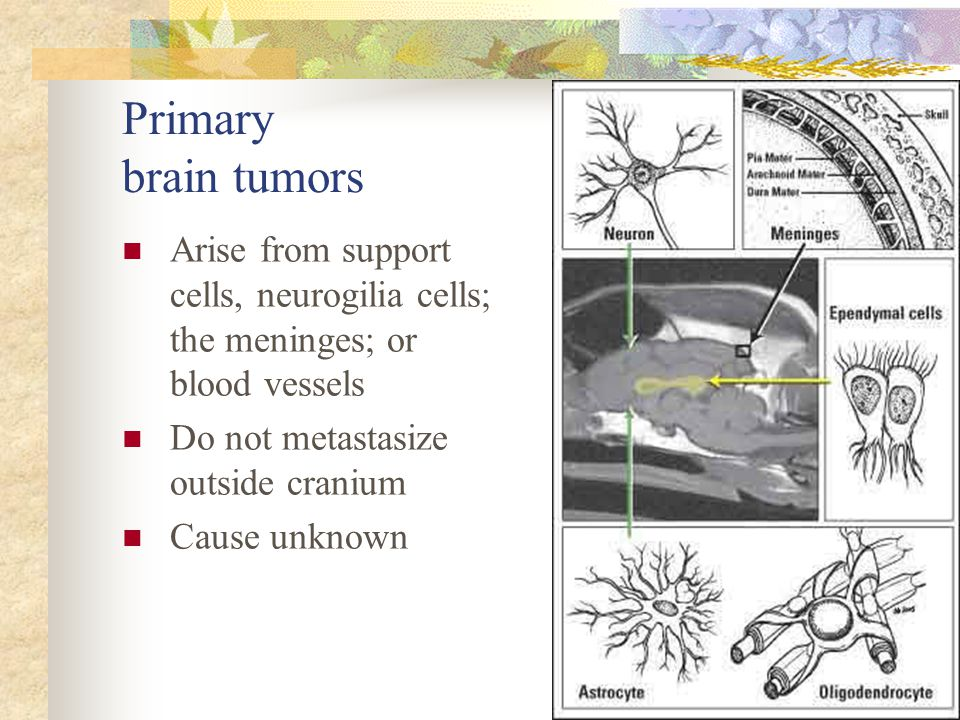 Primary brain tumors Arise from support cells, neurogilia cells; the meninges; or blood vessels. Do not metastasize outside cranium.
