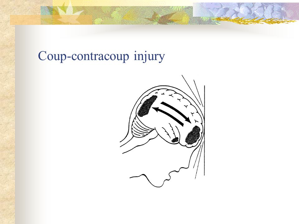 Coup-contracoup injury