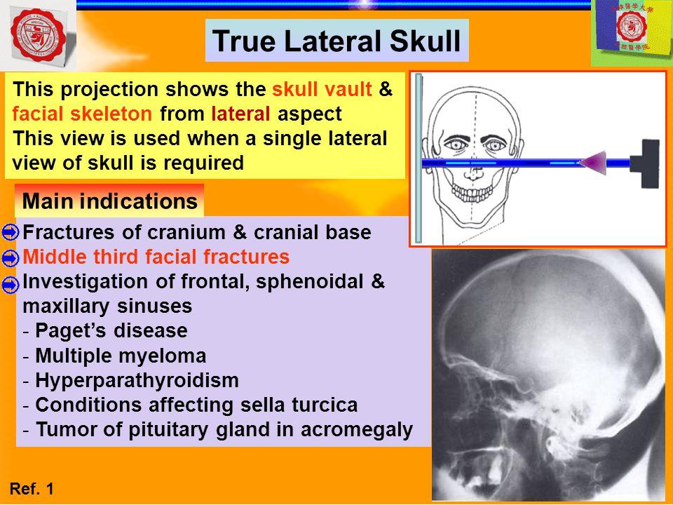 True Lateral Skull Main indications