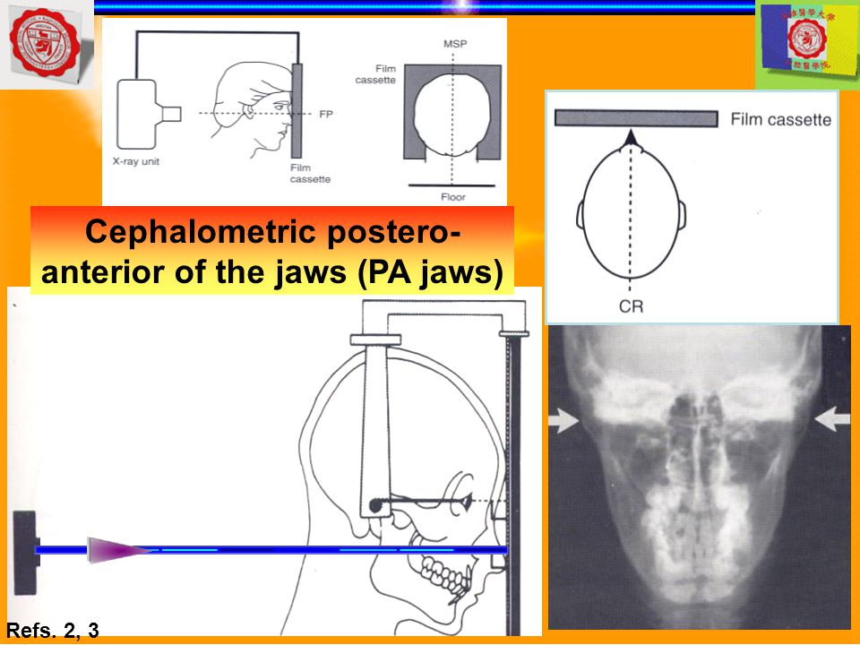 Cephalometric postero- anterior of the jaws (PA jaws)
