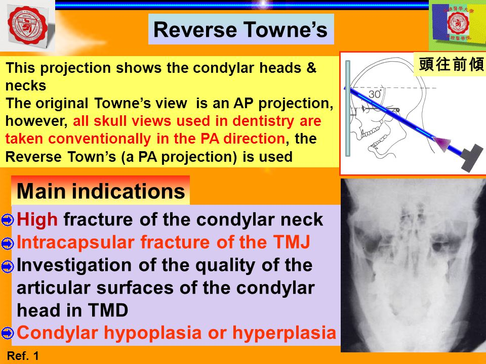 Reverse Towne's Main indications High fracture of the condylar neck