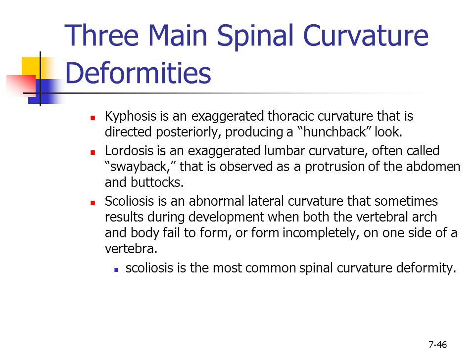 Three Main Spinal Curvature Deformities