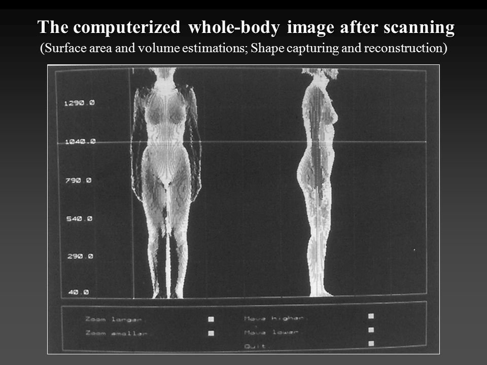 The computerized whole-body image after scanning