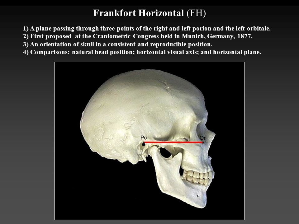 Frankfort Horizontal (FH)
