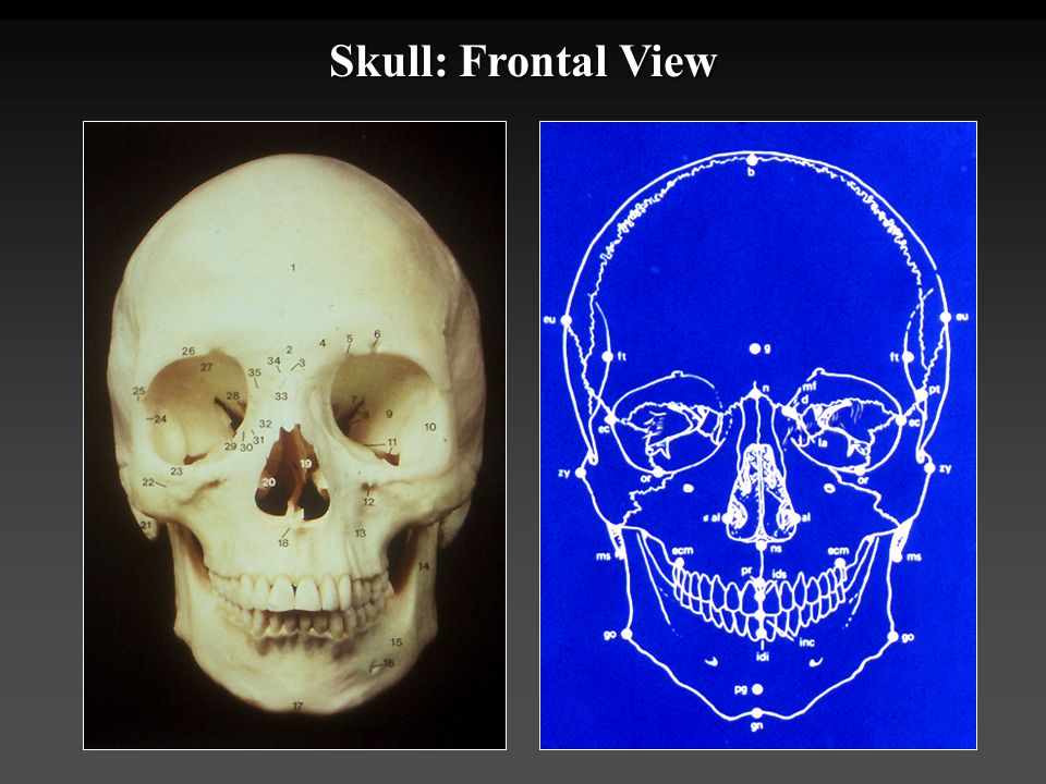 Skull: Frontal View
