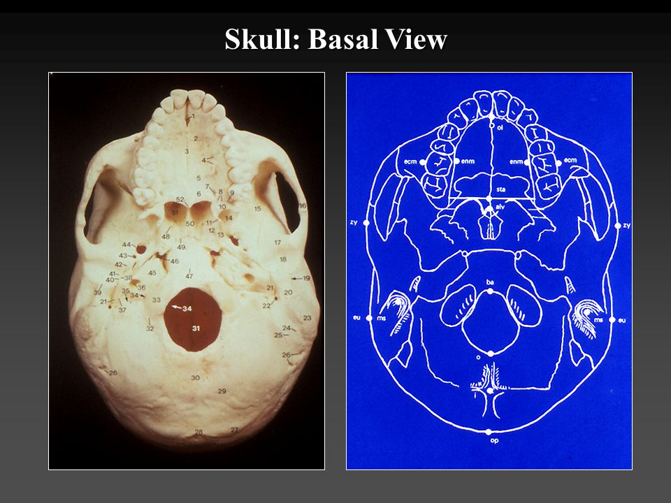 Skull: Basal View