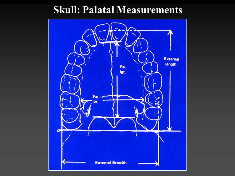 Skull: Palatal Measurements