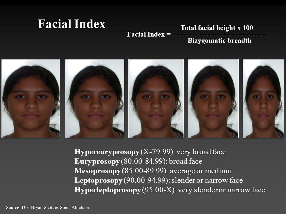 Facial Index Hypereuryprosopy (X-79.99): very broad face