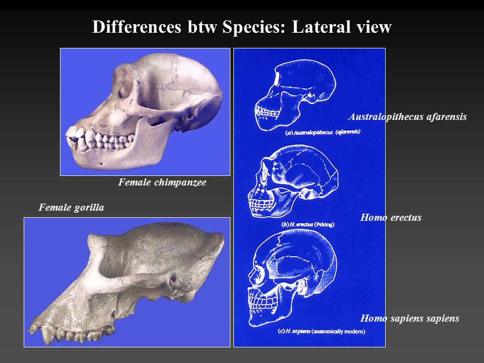 Differences btw Species: Lateral view Australopithecus afarensis