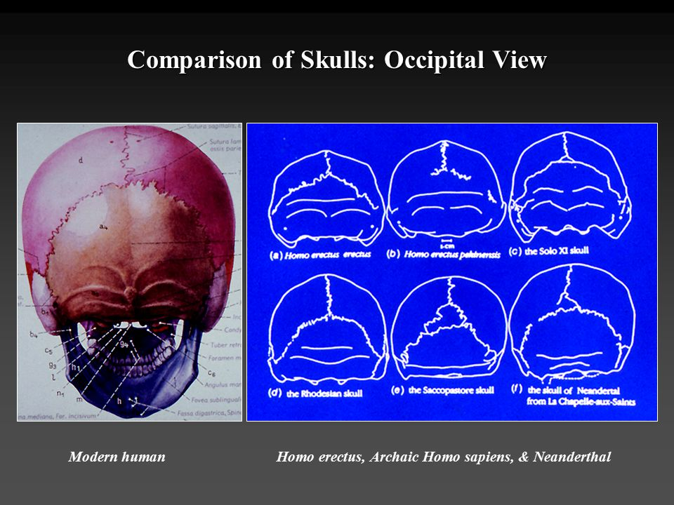 Comparison of Skulls: Occipital View