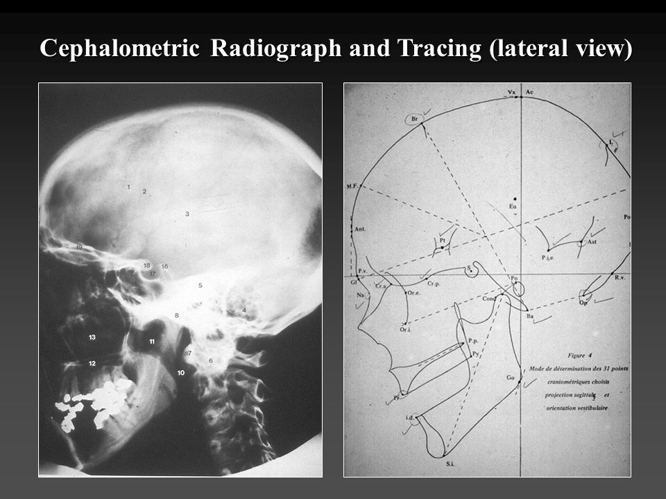 Cephalometric Radiograph and Tracing (lateral view)