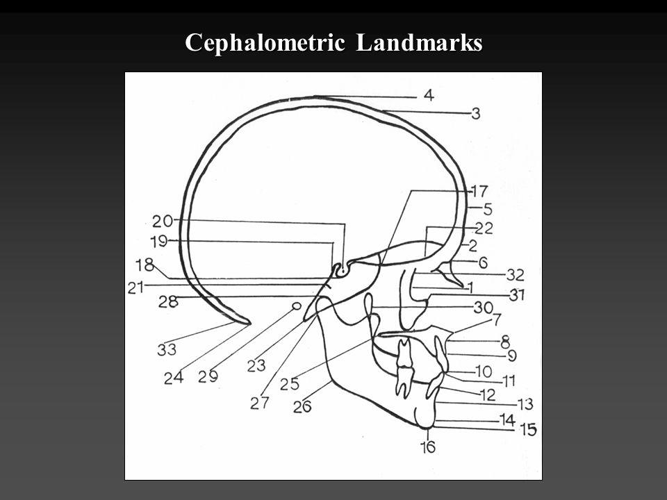 Cephalometric Landmarks
