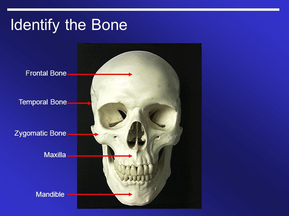 Identify the Bone Frontal Bone Temporal Bone Zygomatic Bone Maxilla