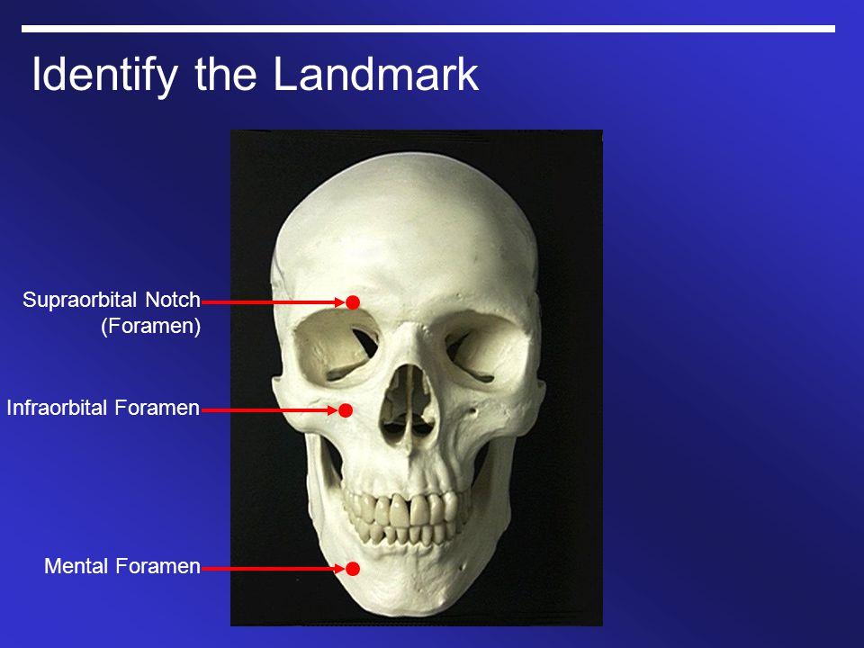 Identify the Landmark Supraorbital Notch (Foramen)