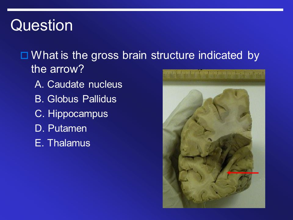 Question What is the gross brain structure indicated by the arrow