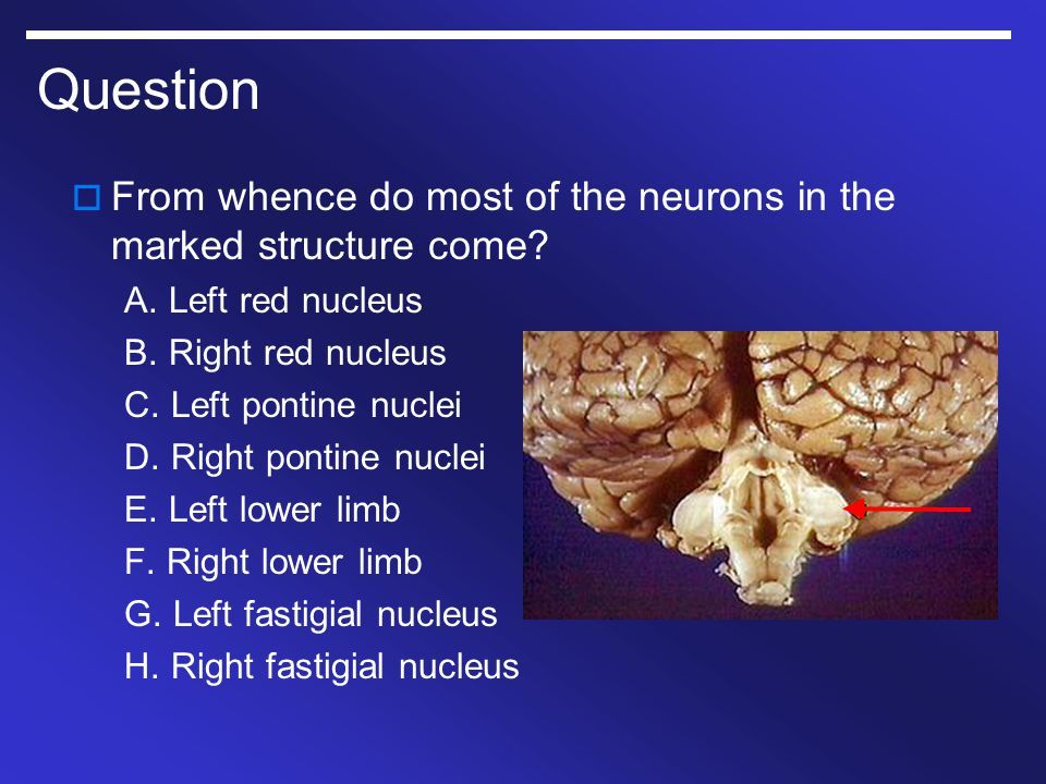 Question From whence do most of the neurons in the marked structure come A. Left red nucleus. B. Right red nucleus.