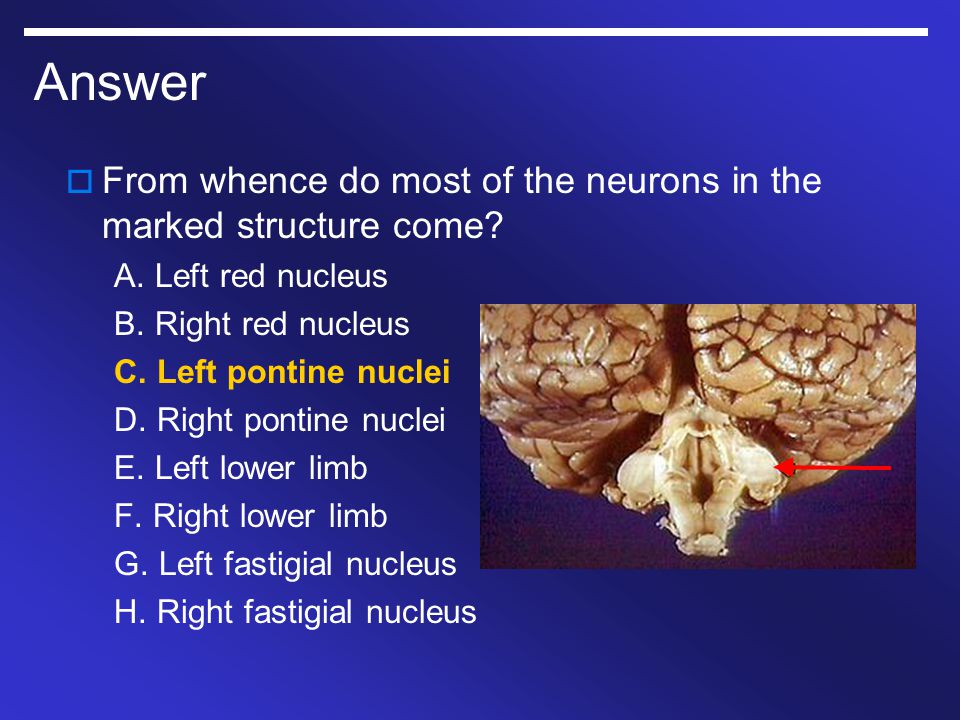Answer From whence do most of the neurons in the marked structure come A. Left red nucleus. B. Right red nucleus.