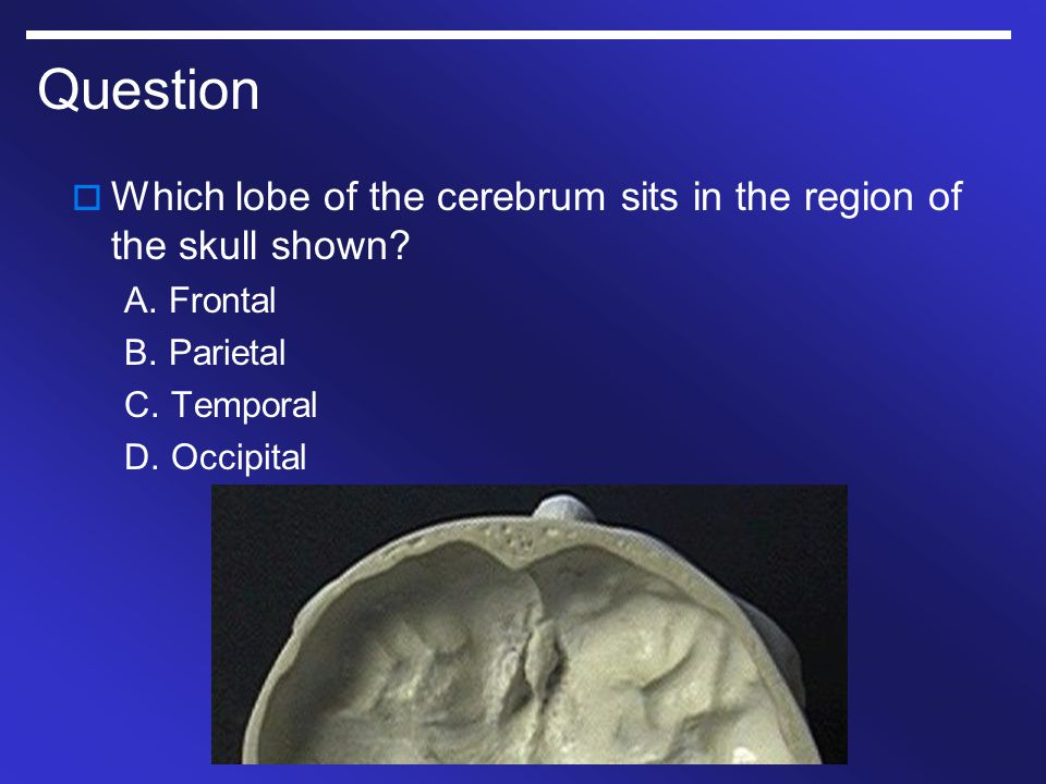 Question Which lobe of the cerebrum sits in the region of the skull shown A. Frontal. B. Parietal.