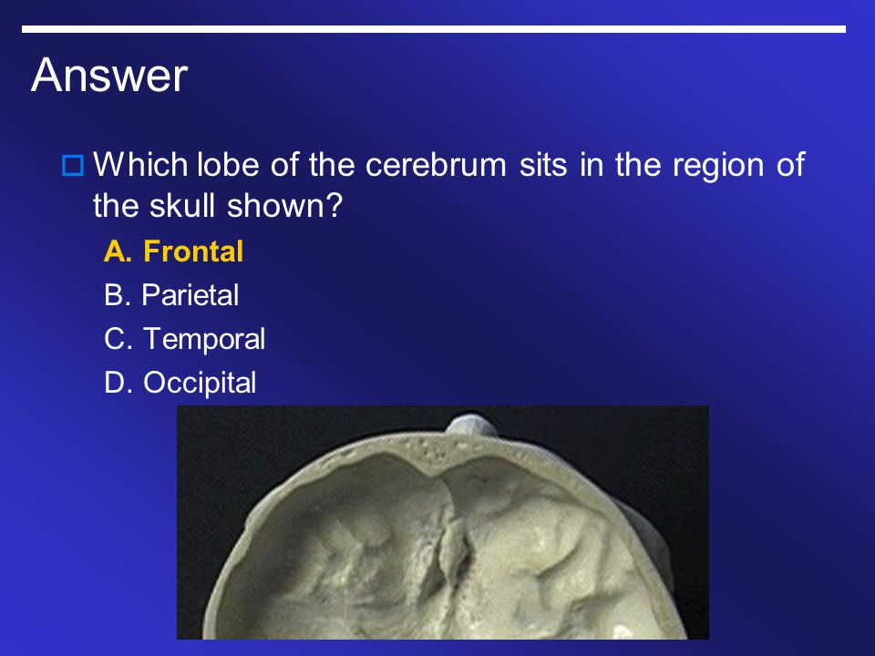 Answer Which lobe of the cerebrum sits in the region of the skull shown A. Frontal. B. Parietal.