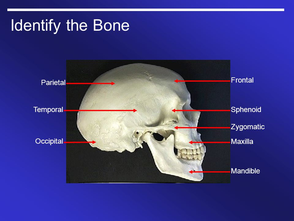 Identify the Bone Frontal Parietal Temporal Sphenoid Zygomatic