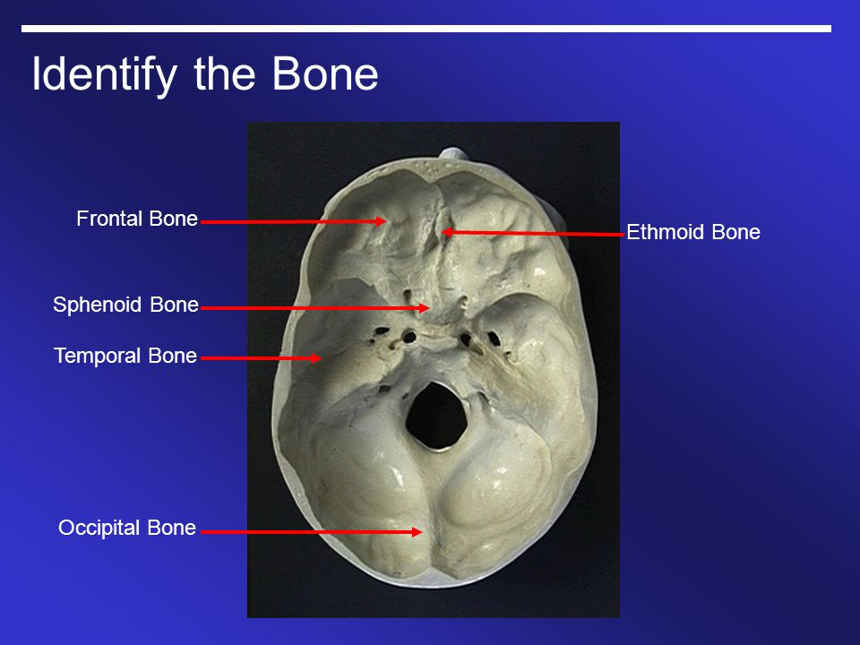 gross anatomy skull and brain 1/21/ ppt video online download, Human Body