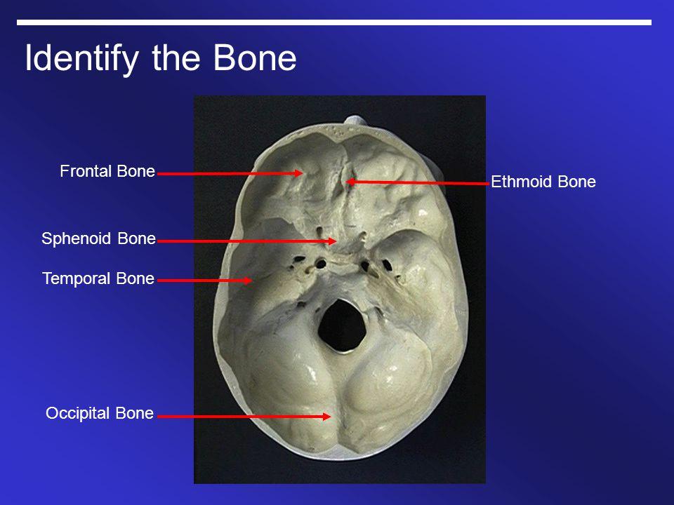 Identify the Bone Frontal Bone Ethmoid Bone Sphenoid Bone