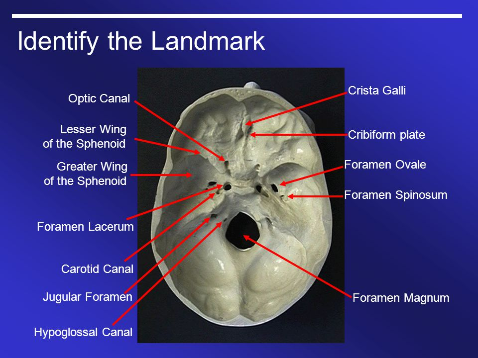 Identify the Landmark Crista Galli Optic Canal Lesser Wing