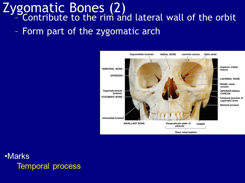 Zygomatic Bones (2) Contribute to the rim and lateral wall of the orbit. Form part of the zygomatic arch.