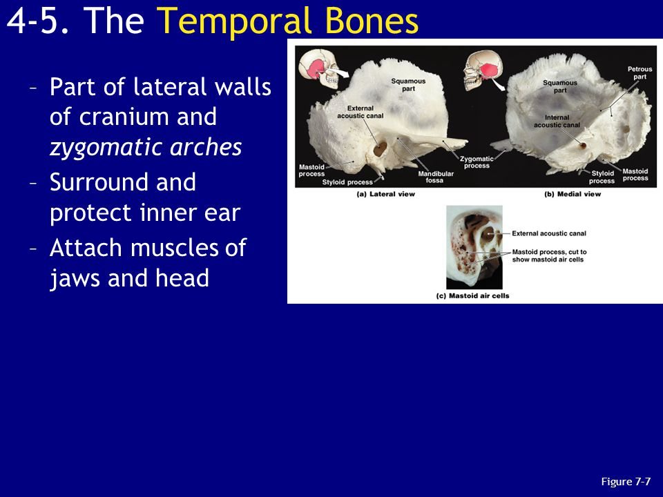 4-5. The Temporal Bones Part of lateral walls of cranium and zygomatic arches. Surround and protect inner ear.
