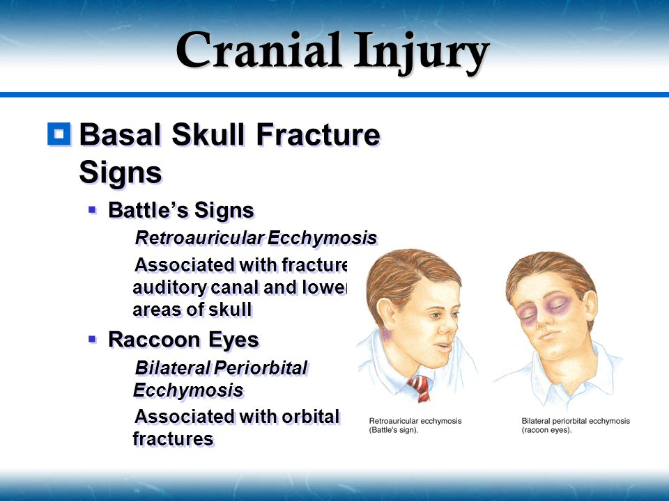 Cranial Injury Basal Skull Fracture Signs Battle's Signs Raccoon Eyes