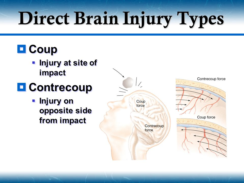 Direct Brain Injury Types
