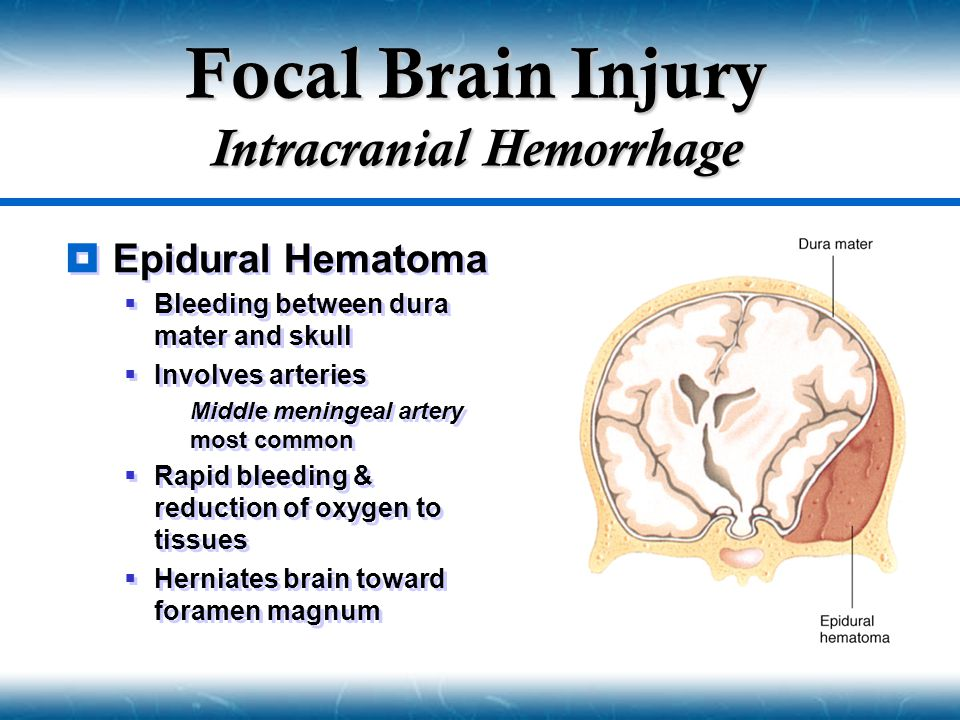 Focal Brain Injury Intracranial Hemorrhage