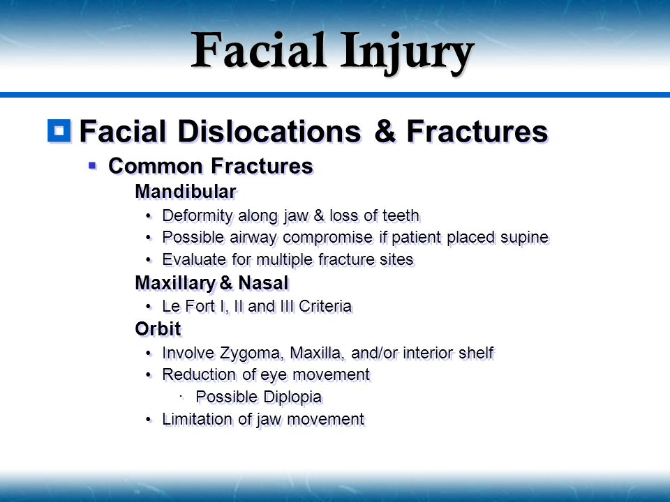 Facial Injury Facial Dislocations & Fractures Common Fractures