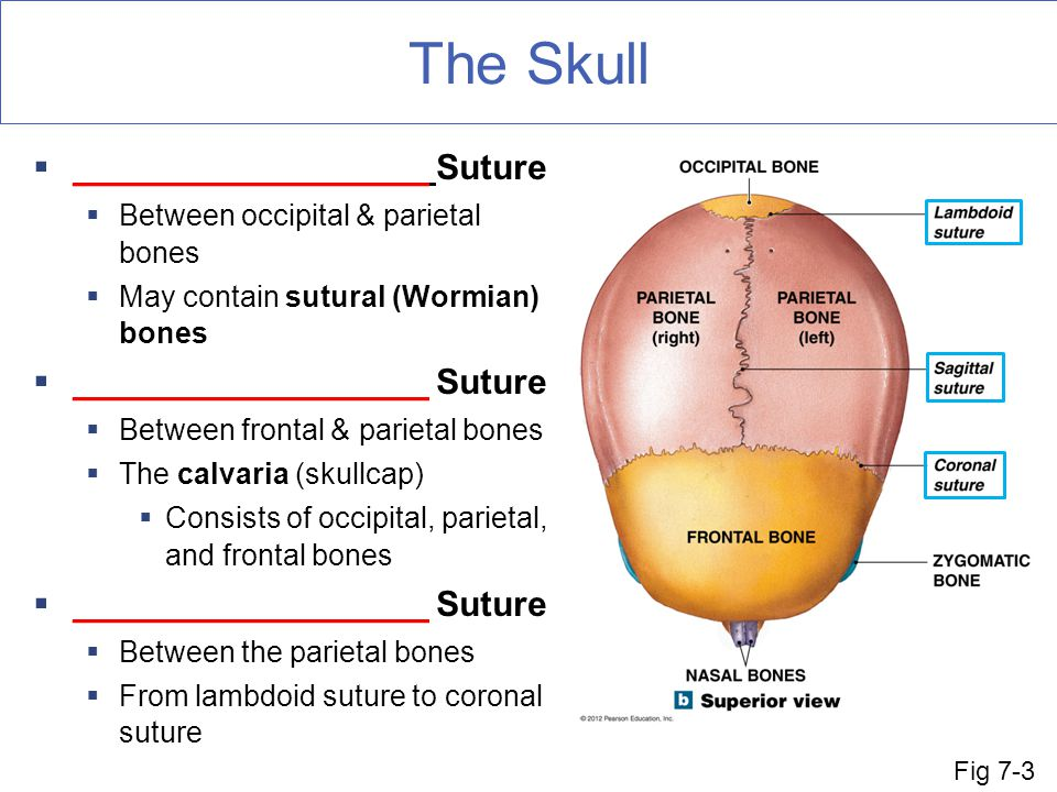 The Skull __________________ Suture Between occipital & parietal bones