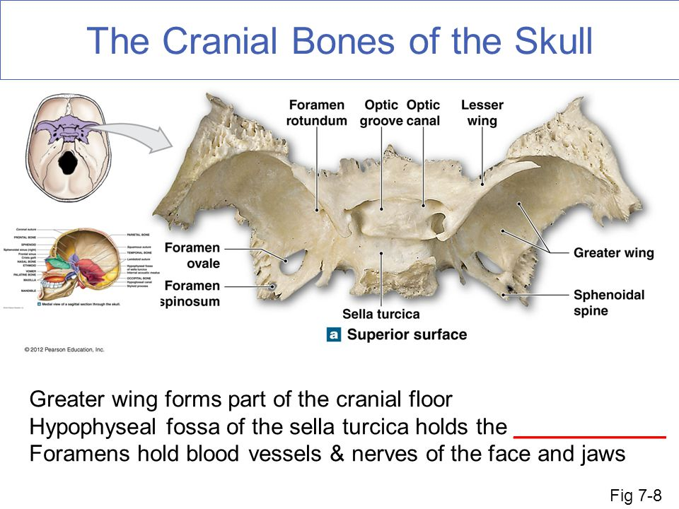 the axial skeleton fun facts about bones - ppt download, Sphenoid