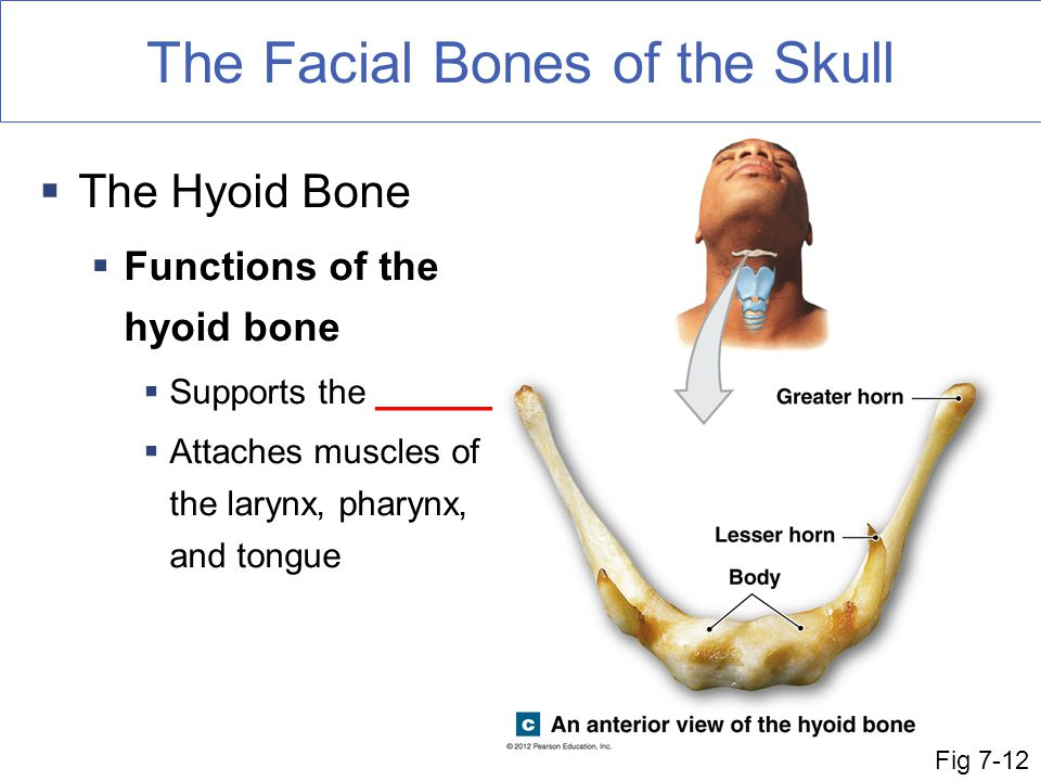 The Facial Bones of the Skull
